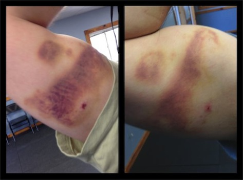 training-bruises-2